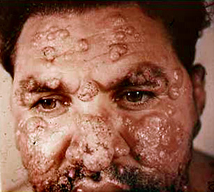 Jihadiştii sunt afectaţi grav de o epidemie de leishmaniasis (2)